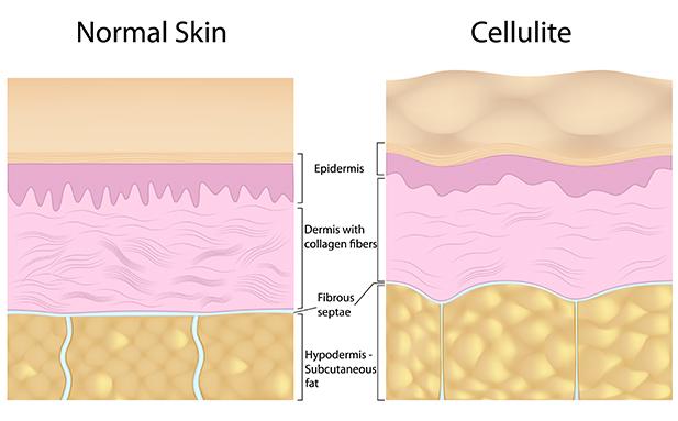 normalskin_vs_cellulite